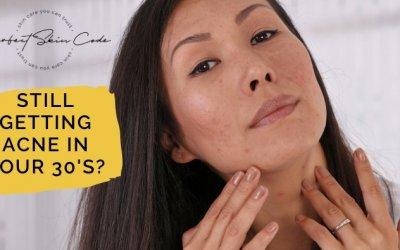 What You Should Know If You Are Still Getting Acne In Your 30's