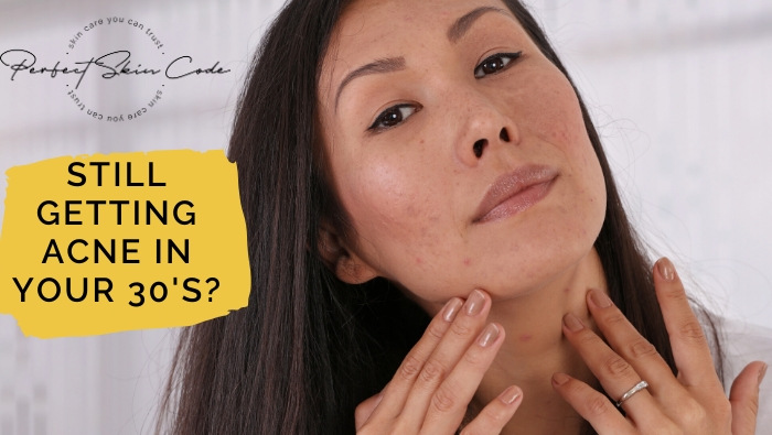 Still getting acne in your 30s?