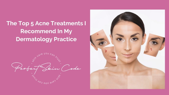 top 5 acne treatments I recommend
