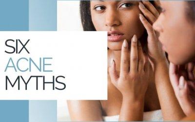 Six Acne Myths